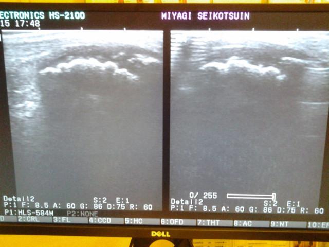 セーバー病超音波画像